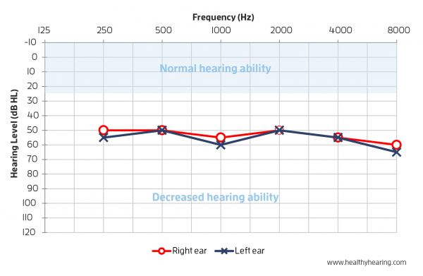 Audiogram depicting red and blue lines straight across