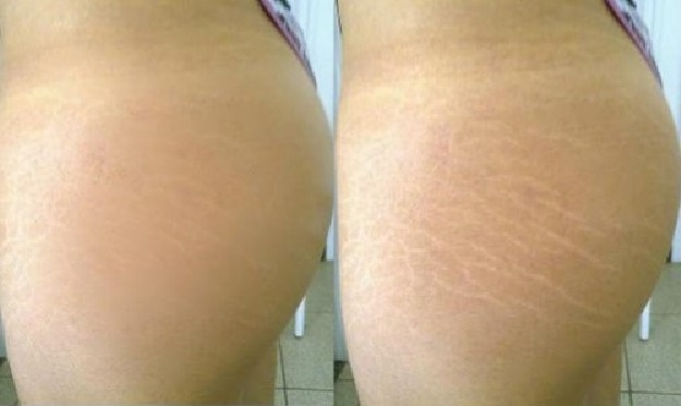 stretch marks on thighs