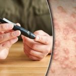 Diabetes type 2 warning – the 'eruptive' skin outbreak you should never ignore