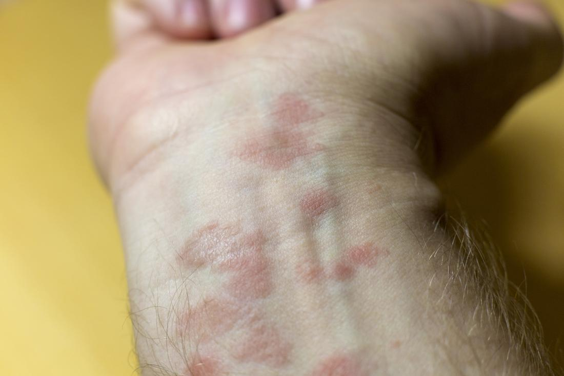 Eczema can cause patches of dry skin across the body.